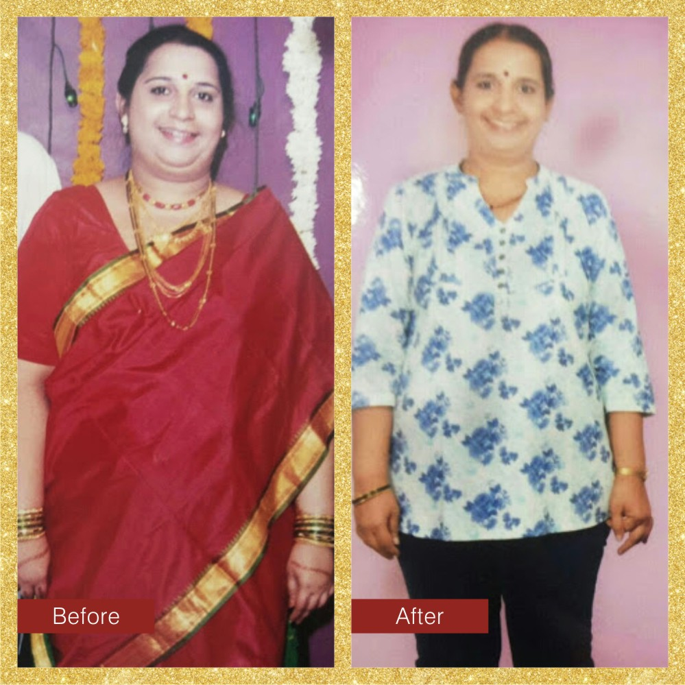 Manali Dhume - Lost 22 Kgs